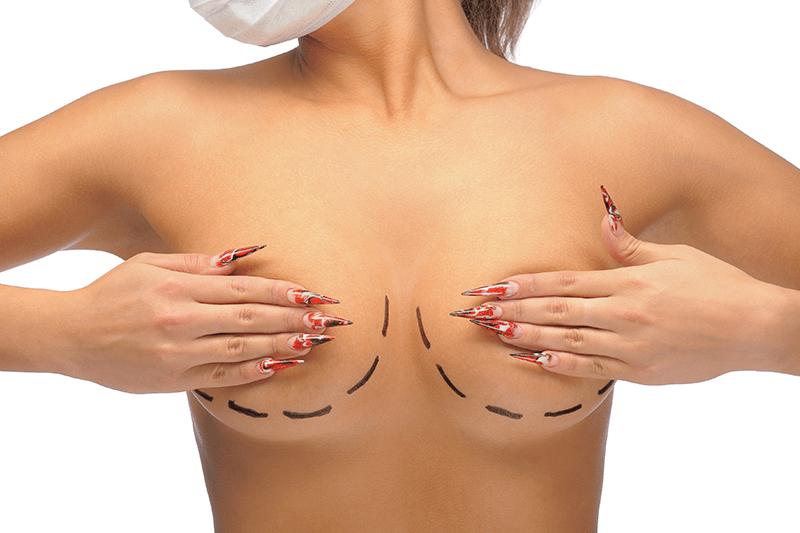 redução de mamas